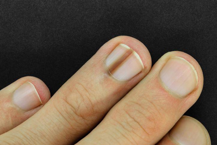 diabetes problemi alle unghie nail