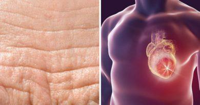 Infarto e rughe sulla fronte: campanello d'allarme, spia di cuore a rischio